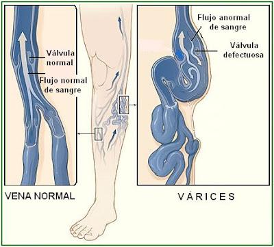 vena varicosa