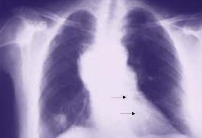 Radiografía que muestra áreas de neumonía (flechas)