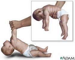 Esquema de un bebé con hipotonía