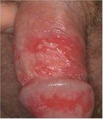 Lesiones genitales por Herpesvirus simple tipo 2