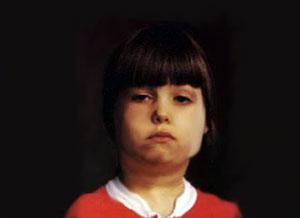 niña con parotiditis