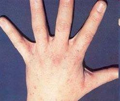 sarna en las manos y brazo