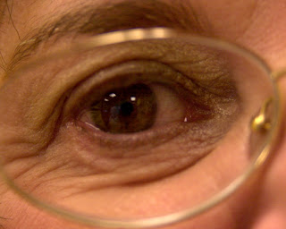 Glaucoma affects millions of people and if left untreated can cause blindness, Photo: Jerry Klein