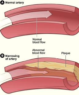 Atherosclerosis in an artery (B)