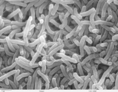 Cholera bacteria Vibrio cholerae bacteria