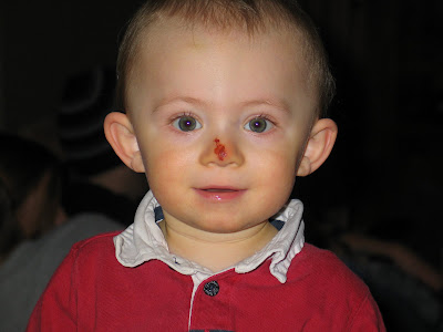 Ryan the Red-nosed Reindeer