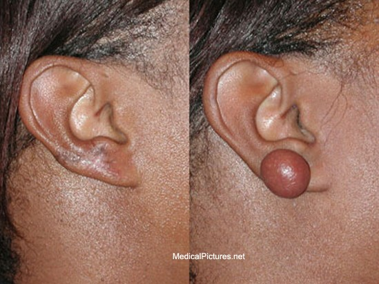 Keloid pictures