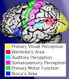 Areas of the Brain Affected by Aphasia