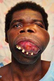 PRE OP Maxillo Facial Tumor