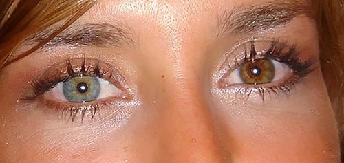 Eye Colors: Total Heterochromia