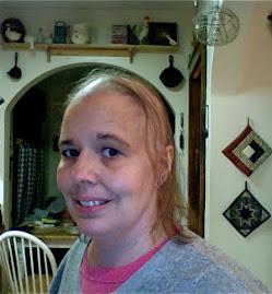 Hair loss #6