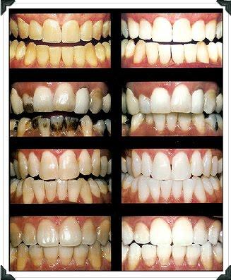 Fique De Olho Nos Precos Clareamento Dental Vai De R 20 A Mais De