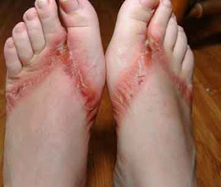 thongs feet rash