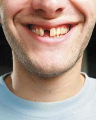 Ausência ou não de dentes pode causar problema digestivo?