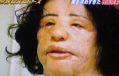 hang mioku addicted to plastic surgery