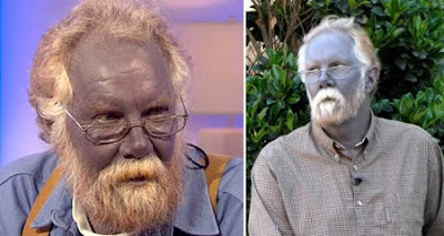blue skin weird skin conditions argyria