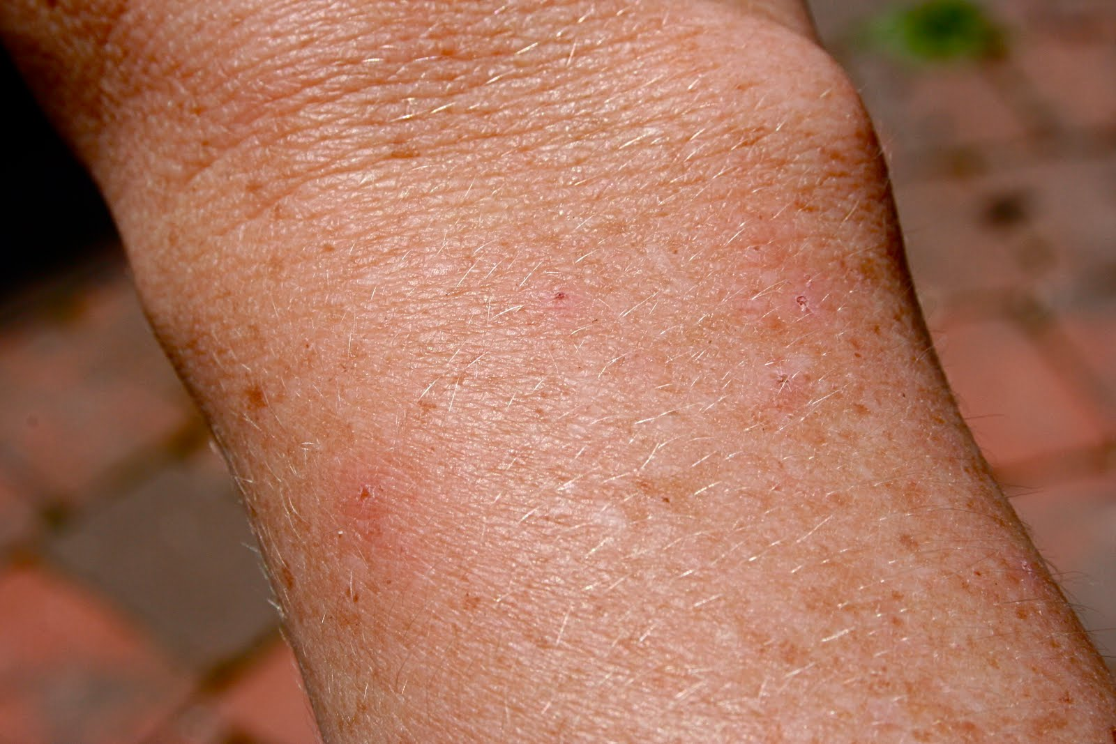Photos of Bat Bites http://cocoons-spa.de/wp-admin/bat-bug-bites