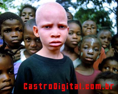 IMAGEM - Negro albino na África