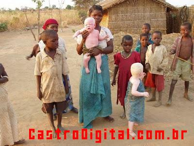 IMAGEM - Uma família negra africana com filhos albinos