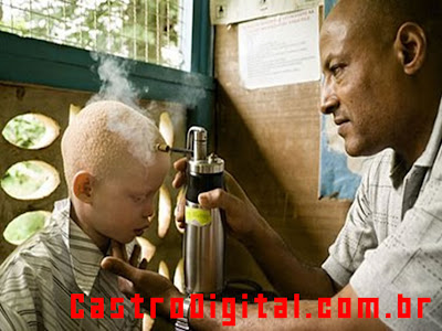 IMAGEM - Albino em tratamento médico