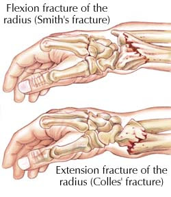 akumahubelajar: Common fractures of the forearm