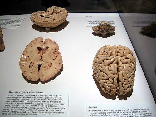 !!! Cérebro !!!