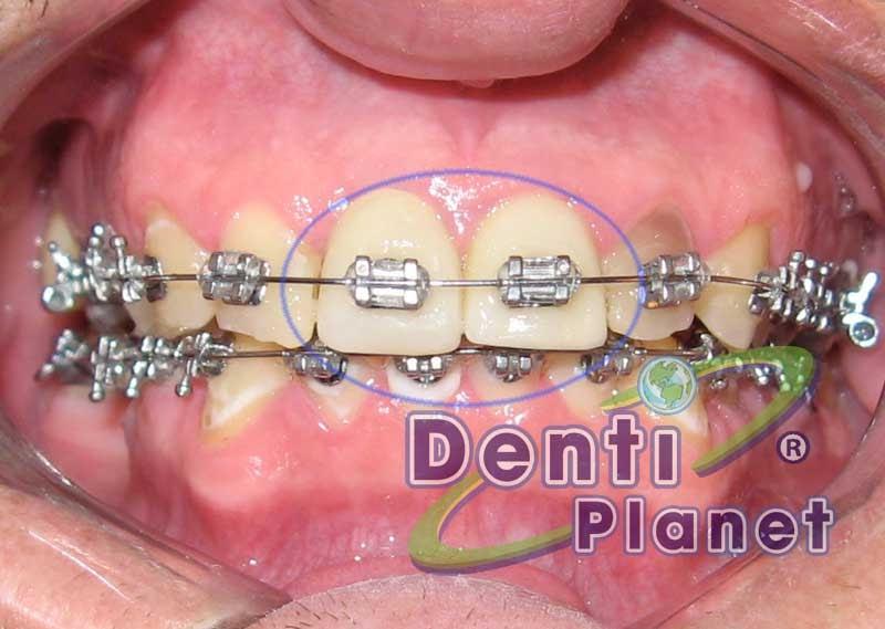Blog ortodoncia dentiplanet se pueden colocar brackets for W de porter ortodoncia