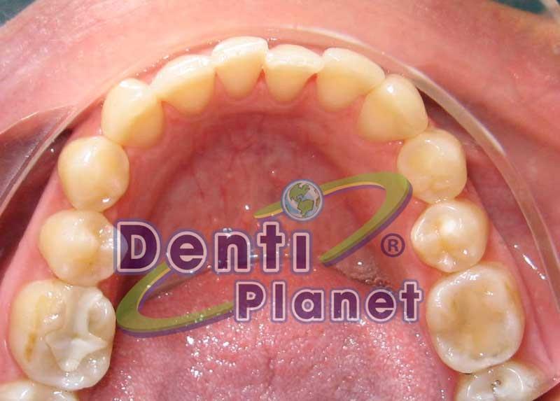 Blog ortodoncia dentiplanet solo tengo un diente mal for W de porter ortodoncia