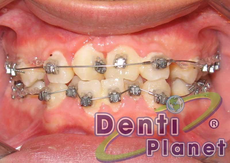 Blog ortodoncia dentiplanet me acaban de pegar los for W de porter ortodoncia