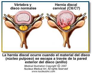 Estando en el vientre duele la espalda en los riñones