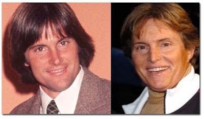 Bruce Jenner before and after surgery