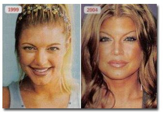 Fergie- plastic surgery - Black Eyed Peas