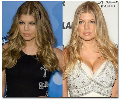 Did Fergie get breast implants