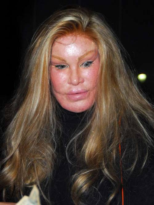 jocelyn wildenstein 2010. jocelyn wildenstein 2010.