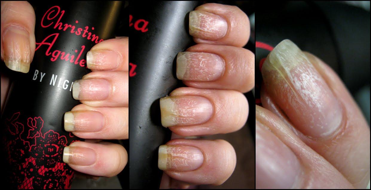 Haarfarbe nageln entfernen