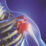 rappresentazione del punto in cui si percepisce dolore alla spalla