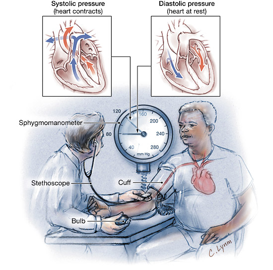 NANDA Hypertension