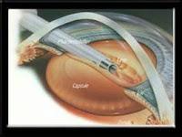 Primeiro procedimento da cirurgia da catarata