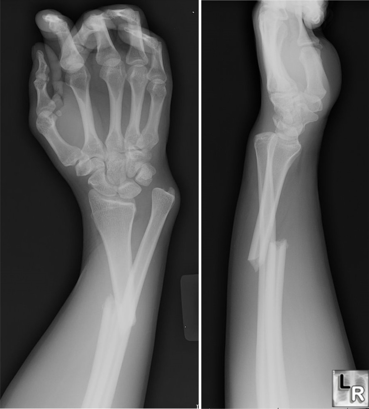 Broken Ulna Dislocated Elbow http://drkmberry.blogspot.com/2010/06/radiology-3-radial-ulnar-bone-fractures.html
