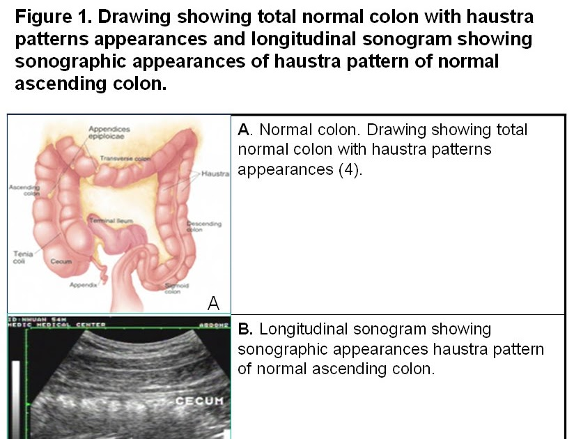 Bs L U00ca V U0102n Ta U0300i U0026 39  S Blog  Acute Colonic Uncomplicated Diverticulitis Clinical  Ultrasound Findings