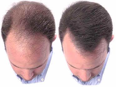 implantes de pelo