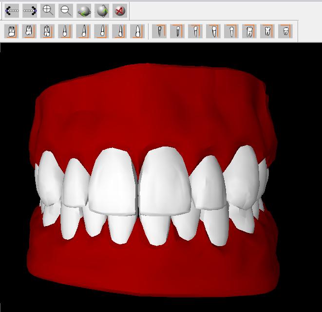 Programa Simulador 3D de Anatomia Dental ~ Odonto Download\'s