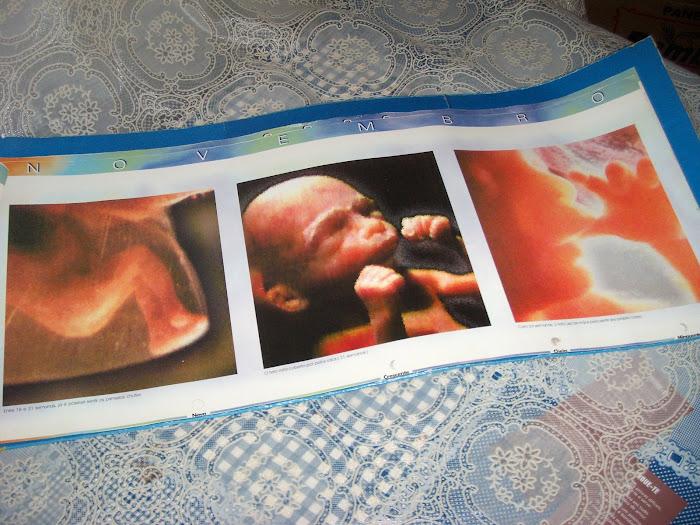 Álbum do desenvolvimento do bebê