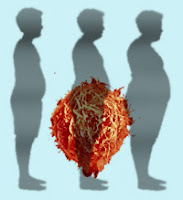 obesity and men infertility