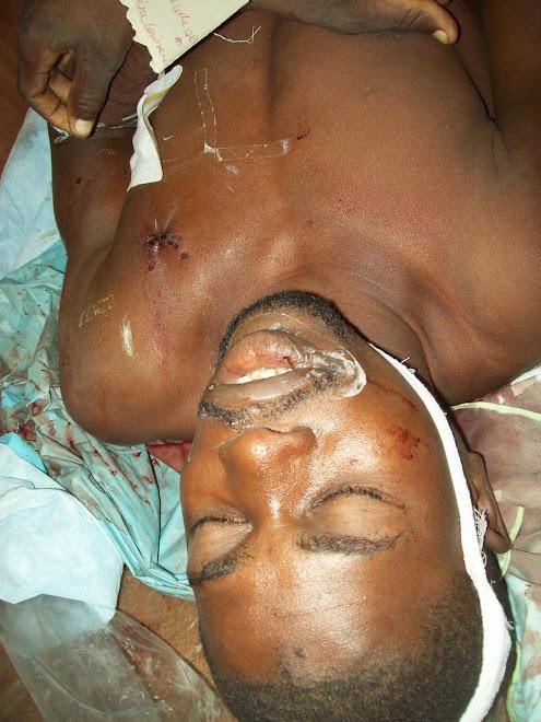 Cap-Haitien : Violence à la Bande du Nord.