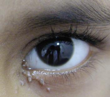 verrugas en los ojos: