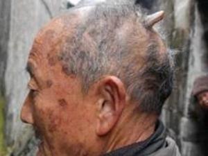 Kakek Unik ini Memiliki Tanduk di Kepalanya
