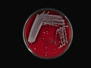 Staph. aureus in Blood Agar