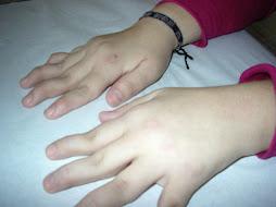 encontramos las manos