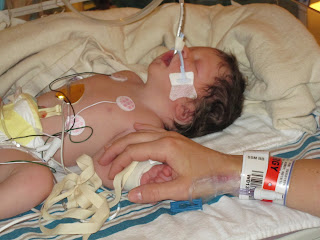 newborn on ventilator